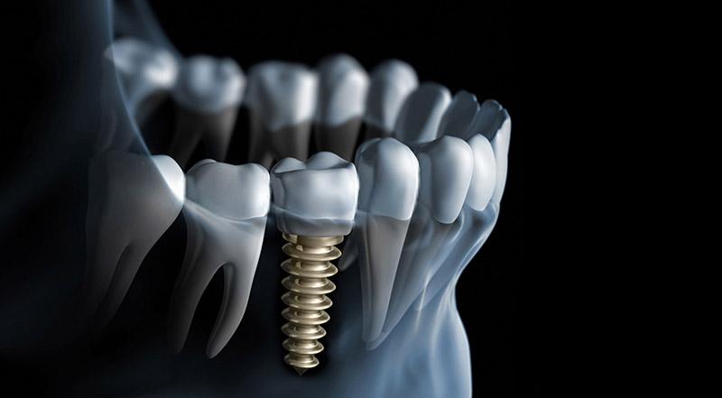 zahnzentrum-b6-zahnmedizin-zahnersatz-krone-zahnarzt-giessen
