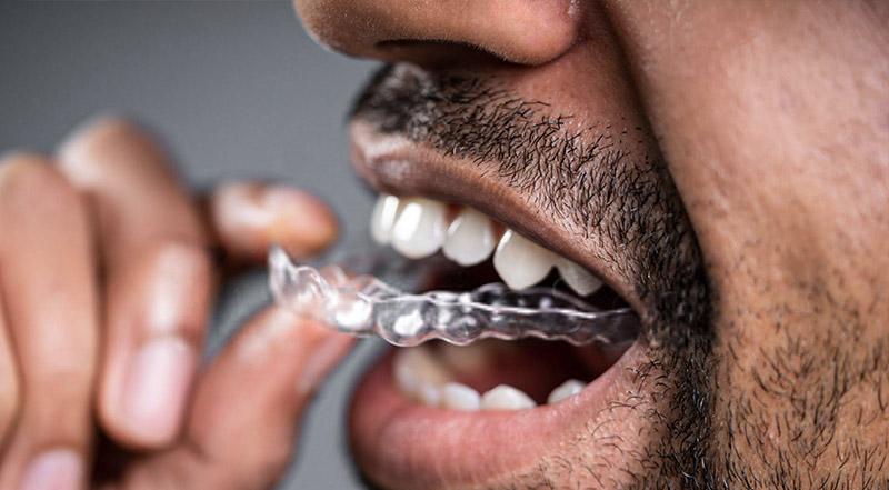 zahnzentrum-b6-zahnmedizin-zahnkorrektur-zahnschiene-ohne-üblichen-abdruck